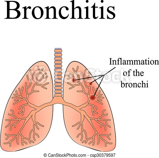 Bronchitis The Anatomical Structure Of The Human Lung Vector
