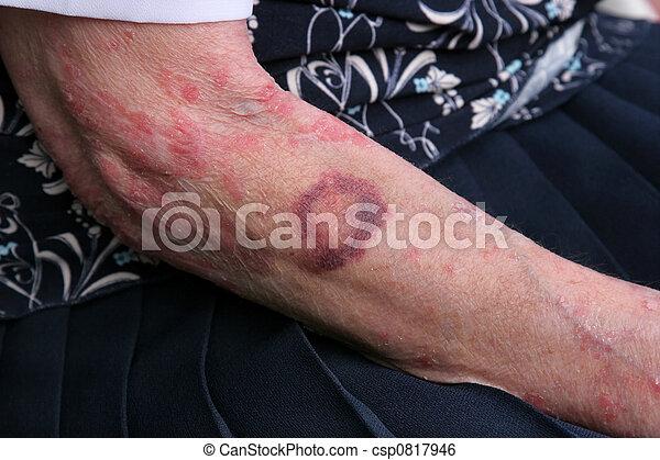 Bruising and Sceriosis - csp0817946