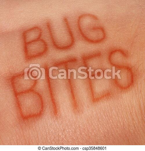 Bug Bites - csp35848601