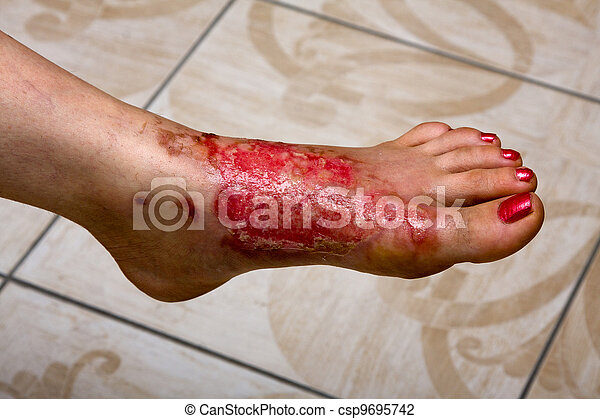Burn feet - csp9695742