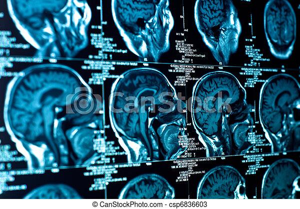 cérebro, ct, closeup, varredura - csp6836603