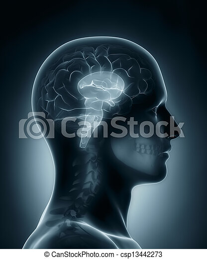 cérebro, médico, caule, raio x, varredura - csp13442273