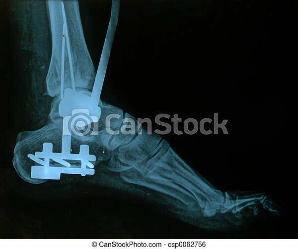 X-ray, foot. - csp0062756