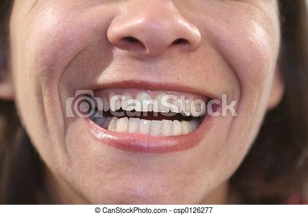 Dental - csp0126277
