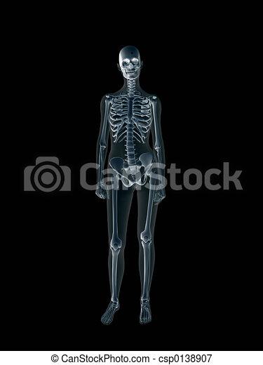 Xray, x-ray of the human female body. - csp0138907