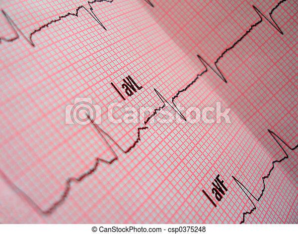 heart analysis scheme