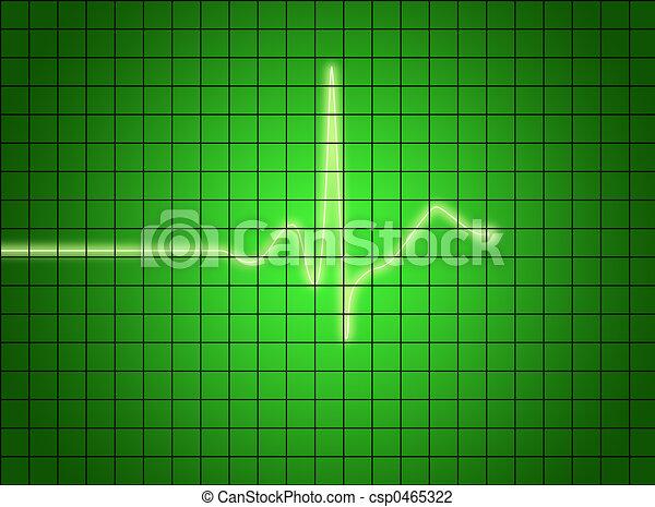 EKG signal - csp0465322