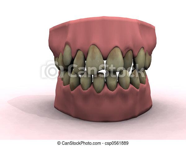bad teeth - csp0561889