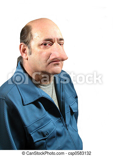 Nasal Congestion - csp0583132