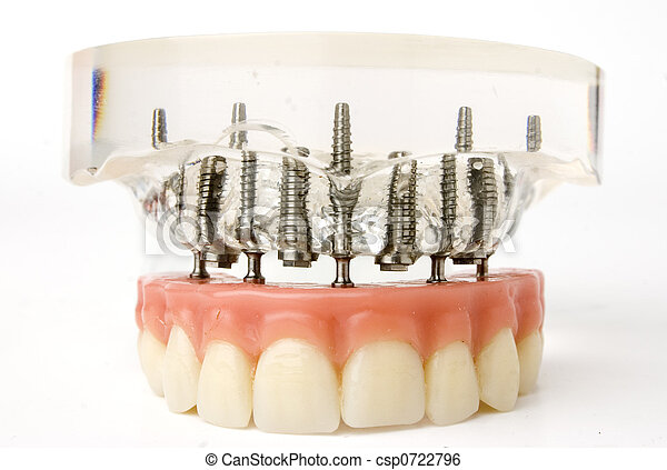 植入, 模型, 牙齒 - csp0722796