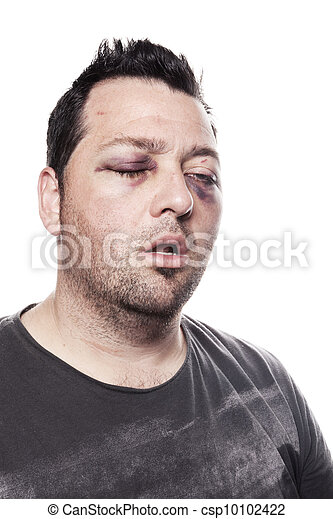 black eye injury accident violence isolated - csp10102422