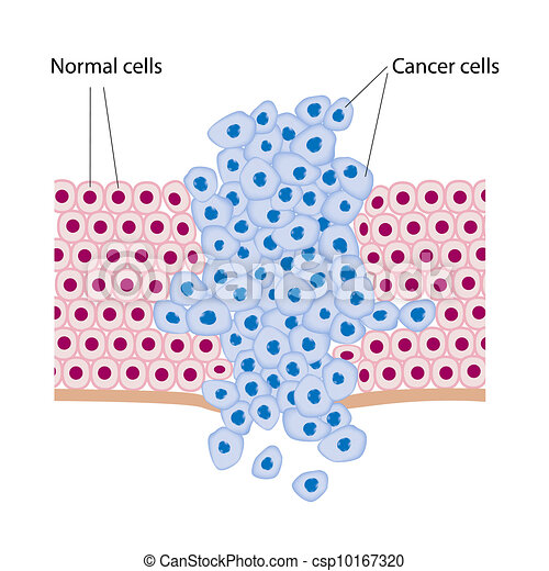 Cancer cells in a growing tumor - csp10167320