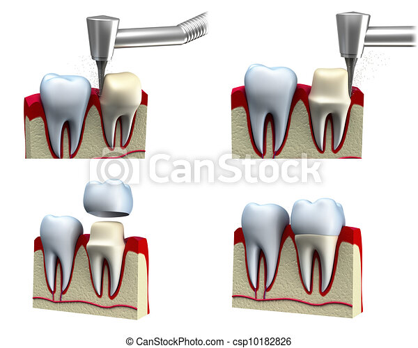 Dental crown installation process  - csp10182826