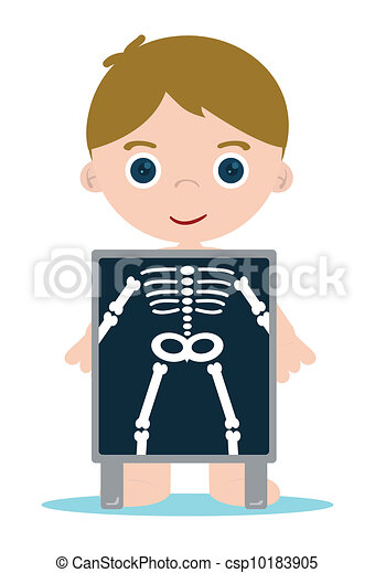 Clip Art X-ray Clipart x ray illustrations and clipart 17101 royalty free bones kid check kid
