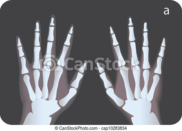 x Ray Line Drawing X-ray Illustration Black And