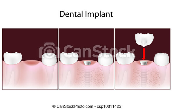 Dental implant procedure, eps10 - csp10811423