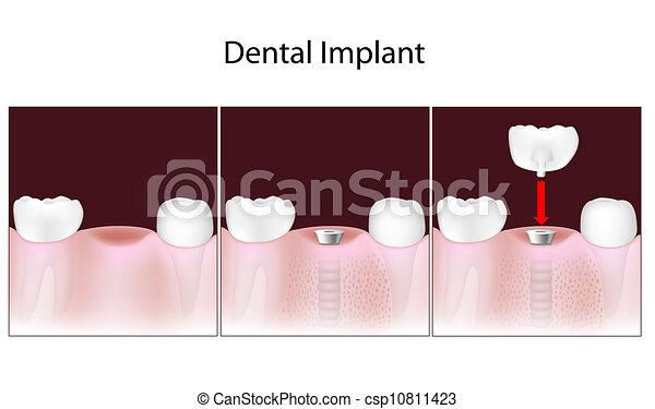 Dental implant procedure, eps10 - csp10811423