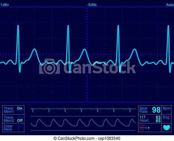 heart monitor screen - csp1083540