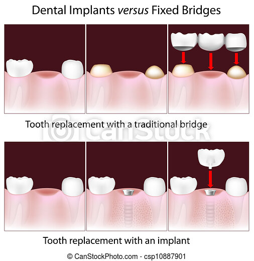 Dental implants versus fixed bridge - csp10887901