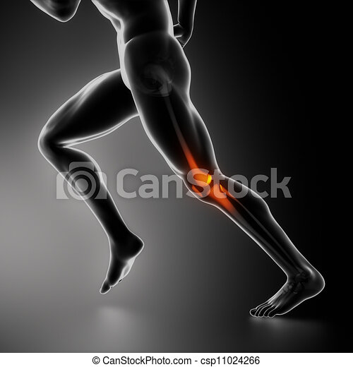 Sports knee injury x-ray concept - csp11024266