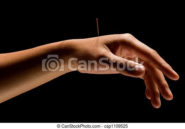 Acupuncture - csp1109525