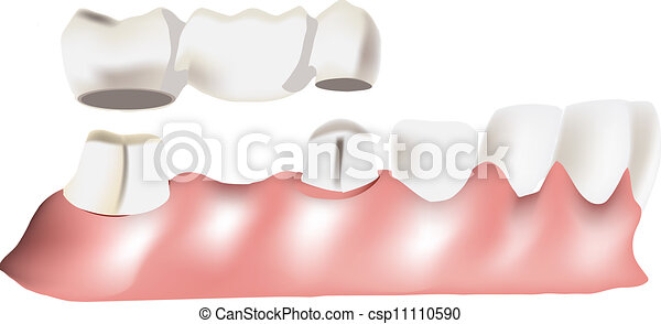 dental bridge - csp11110590