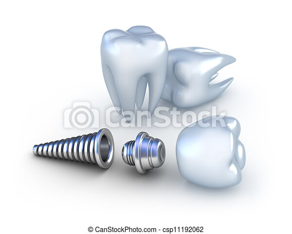 Dental implant and teeth, isolated - csp11192062