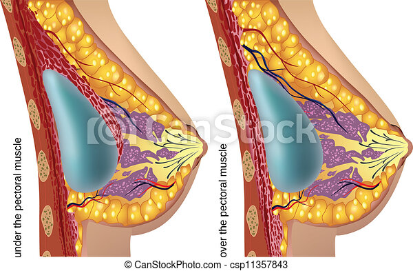 Cosmetic surgery Vector Clip Art Illustrations. 432 Cosmetic ...