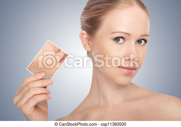 concept skincare . Skin of beauty young woman before and after the procedure  on a gray background - csp11360500