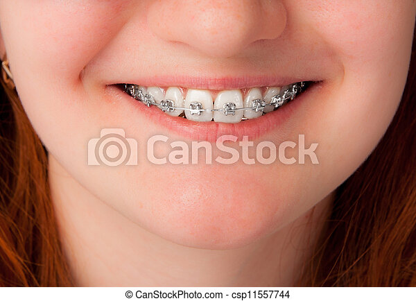 dental care concept. Teeth with braces - csp11557744