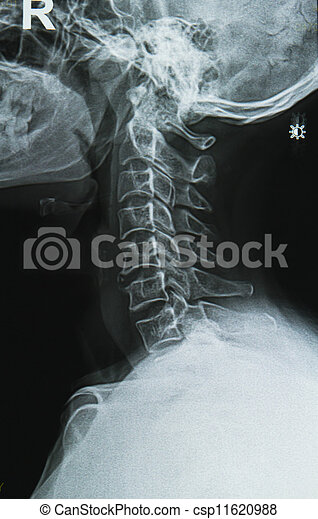 cervical spine neck x-ray image - csp11620988