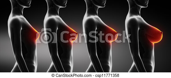 Exemples de tailles de poitrine