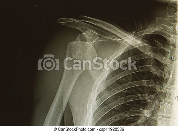 x-rays image of the painful or injury shoulder joint , shoulder dislocation
