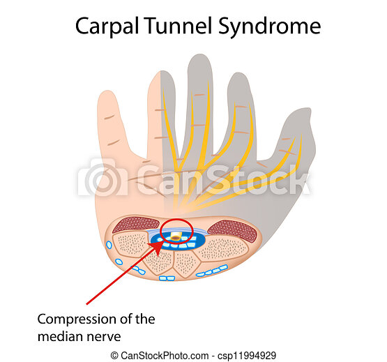 how to avoid carpal tunnel drawing