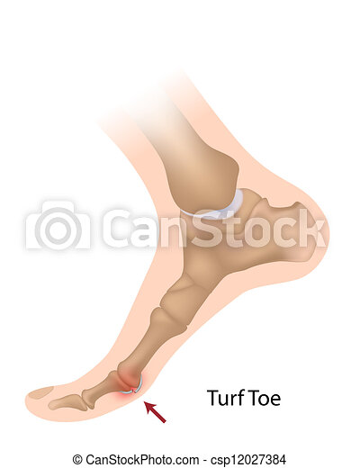 turf toe deutsch