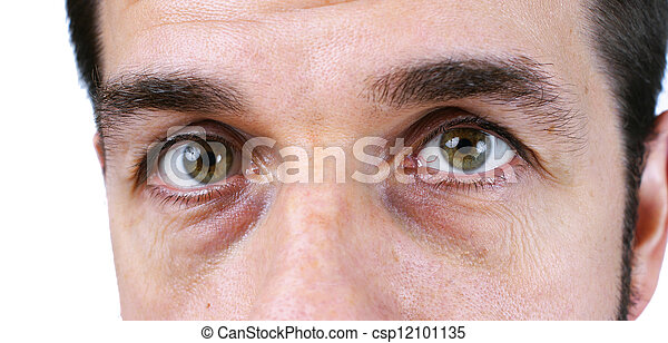Man's vey tired eyes - csp12101135