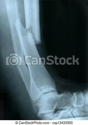 radiografía, de, Un, roto, pierna - csp12433093