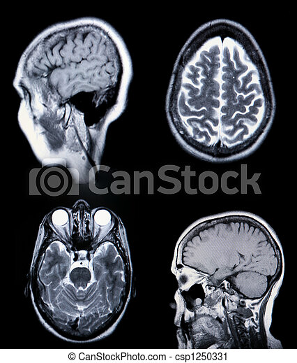 High Resolution  MRI/ MRA (Magnetic Resonance Angiogram) of the brain vasculature (arteries) CRT Monitor Grain Visible - csp1250331
