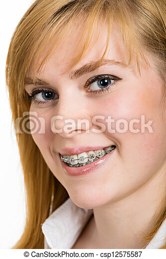 Beautiful young woman with brackets on teeth - csp12575587