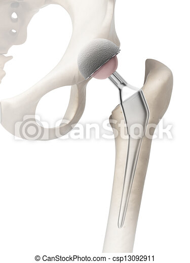 Hip replacement - csp13092911