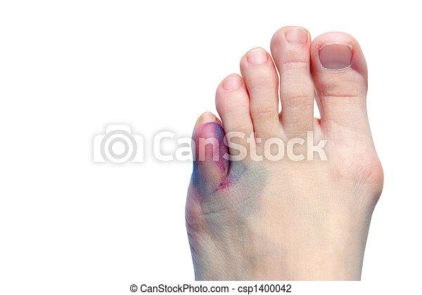 Bruises, bunions  and broken toes - csp1400042