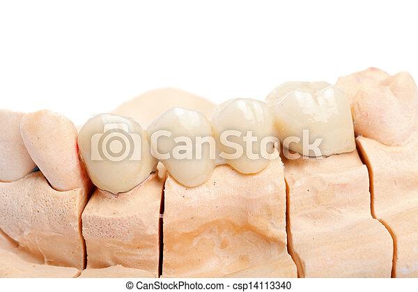 Teeth rehabilitation - csp14113340