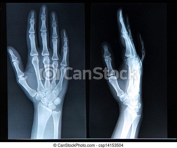 Radiographie genou prix