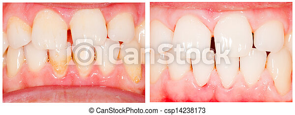 變白, 牙齒 - csp14238173