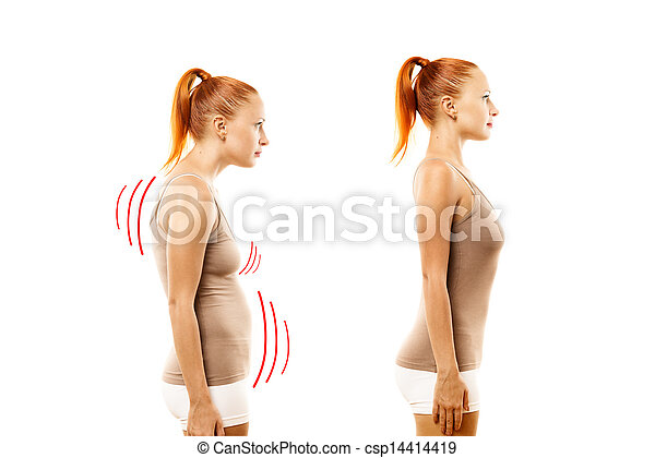 Young woman with position defect and ideal bearing - csp14414419