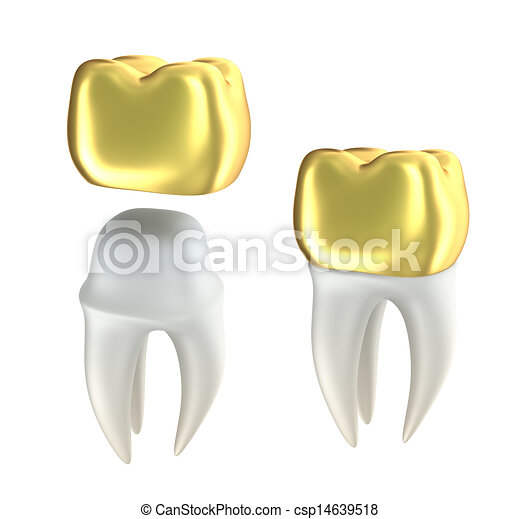 Golden Dental crowns and tooth - csp14639518
