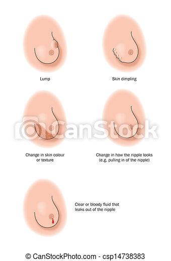 Signos de problemas en los senos
