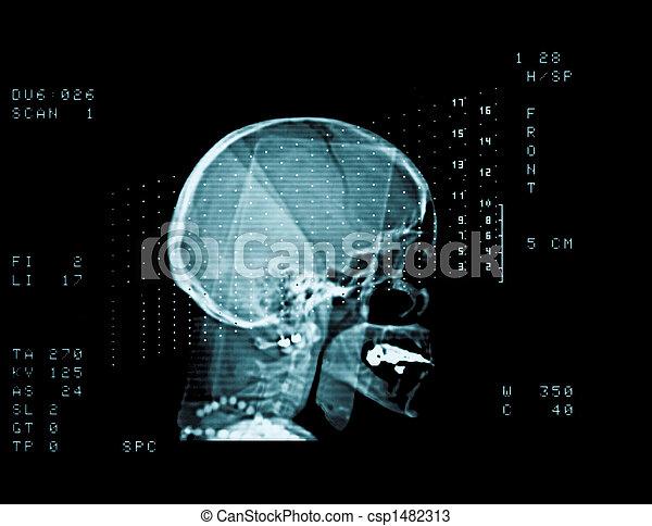 skull cat scan - csp1482313
