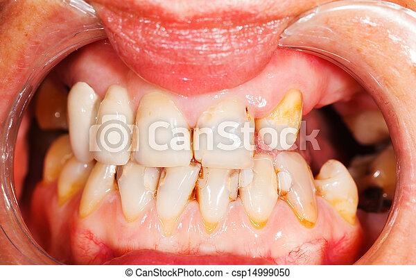 牙齒 - csp14999050