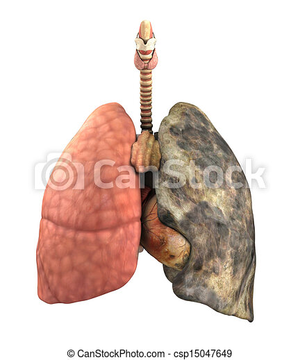 After - stock i... Lungs After Smoking Clip Art